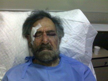 Le caricaturiste Ali Farzat après son agression le 25 août dernier